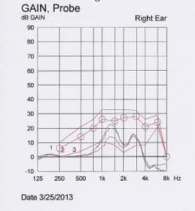 hearing-aids-101-gain-probe-min