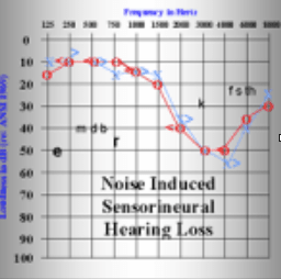 hearing-aids-101-noise-induced-hearing-loss-min